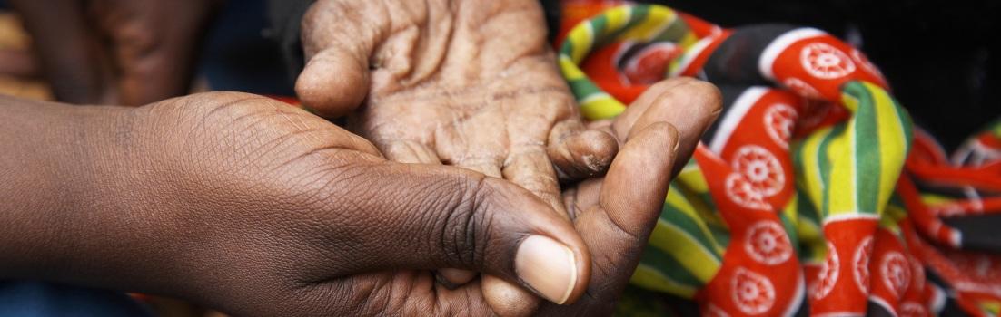 photo: Hand signals to help determine pain levels. Copyright Nadia Bettega.